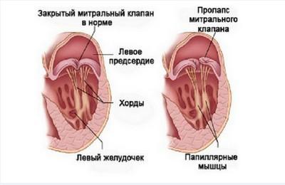 Пролапс передней створки митрального клапана
