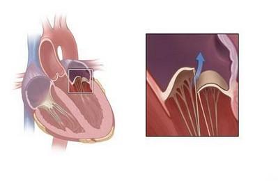 Болезнь клапана сердца пролапс