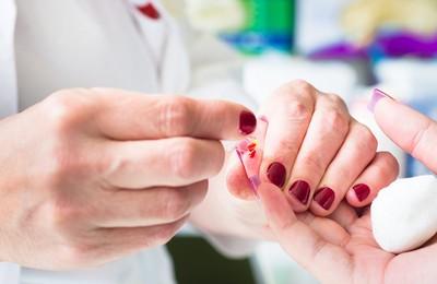 Анизоцитоз и гипохромия в общем анализе крови