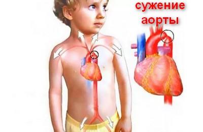 Коарктация аорты - причины, симптомы, диагностика и лечение