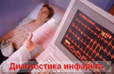 Дифференциальная диагностика болевого синдрома при инфаркте миокарда