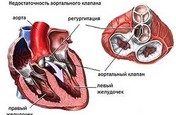 Уплотнение створок аортального клапана что это такое